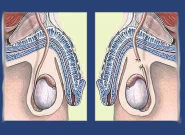 Salud Sexual y embarazo en el período de la adolescencia